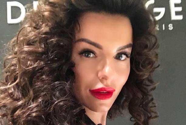 Юлия Волкова решилась на уменьшение своих губ