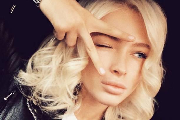 Поклонники встревожены болезненной худобой Алены Шишковой