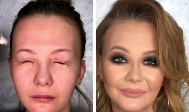 """Как """"избавиться"""" от шрамов на лице с помощью макияжа"""