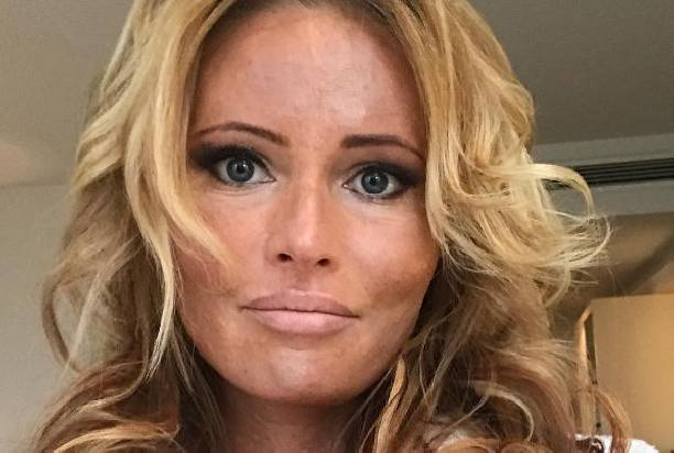 Дана Борисова признается, что из-за наркотиков она резко поседела