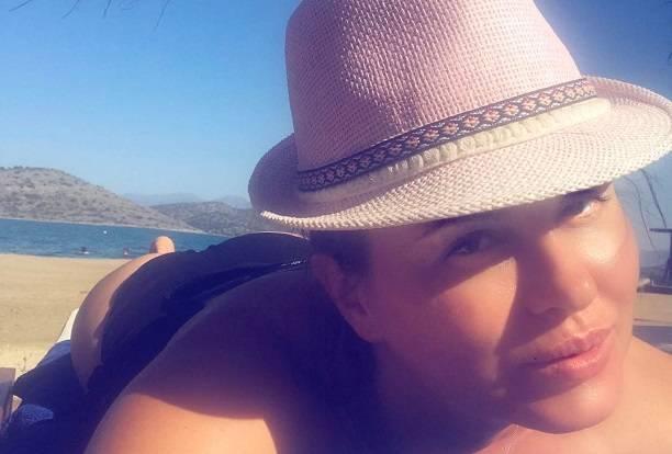 Анна Семенович перегрелась на солнышке