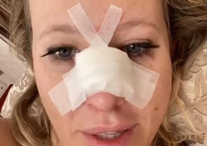 После череды скандалов Ксения Собчак оказалась в больнице со сломанным носом