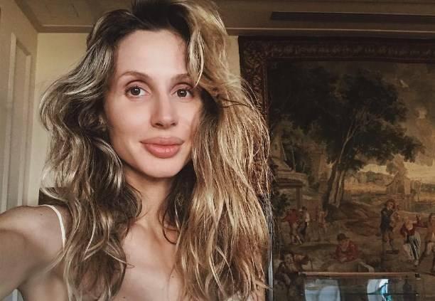 Светлана Лобода рассказала о пьяном хирурге, работавшим с её лицом