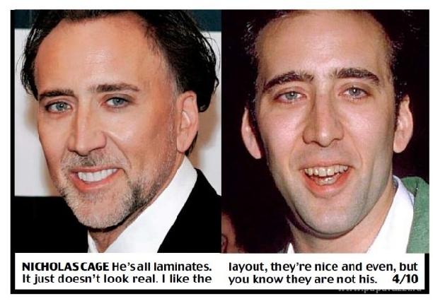 виниры на зубы perfect smail