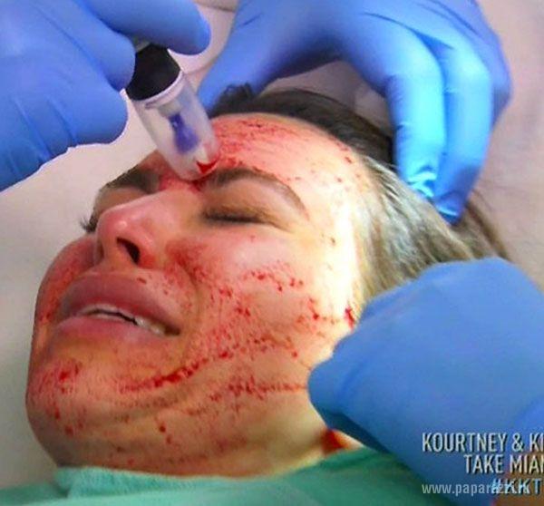 Ким Кардашиан опять воткнула в лицо иголки
