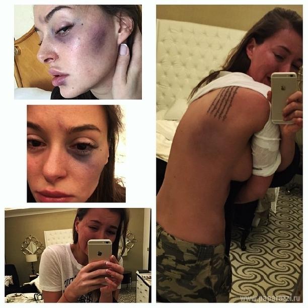 Избитая певица Анна Каллучи отдыхает у бассейна и выкладывает пикантные фотографии