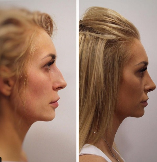Дерябина до и после операции фото