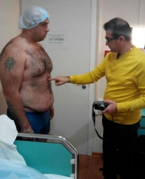 как убрать жир операция