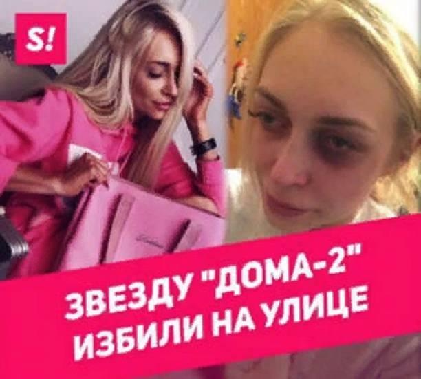 Звезда «Дома-2» Кристина Дерябина проинформировала о нападении