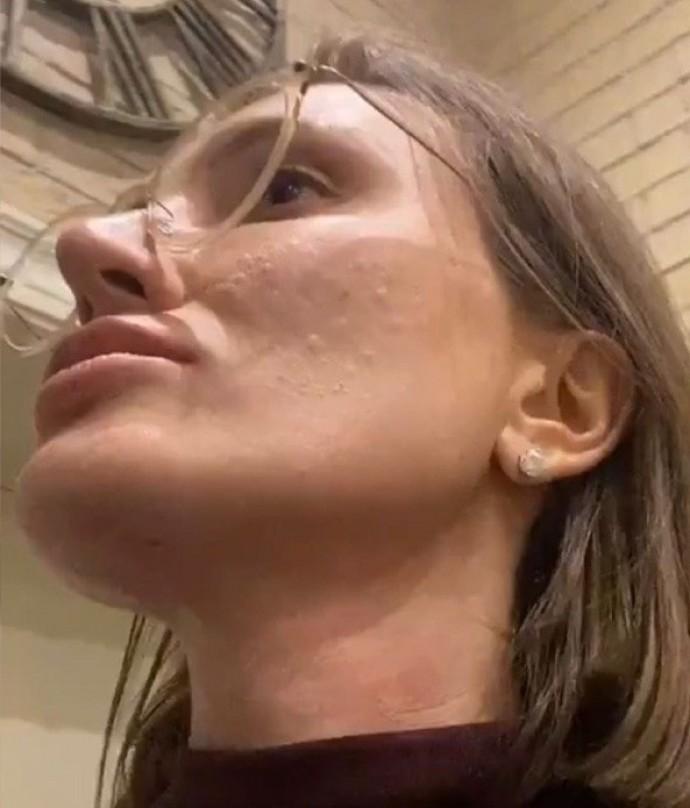 Ксения Бурда случайно показала свое лицо с жуткой кожей
