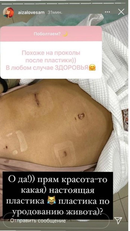 Айзе Анохиной удалили опухоль желудка