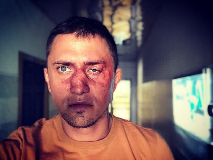 Павел Прилучный дал показания против своего калининградского обидчика