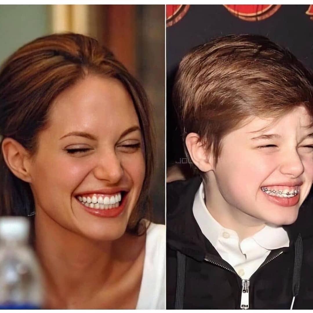 Дочь Анджелины Джоли и Брэда Питта сбрила волосы и установила брекеты
