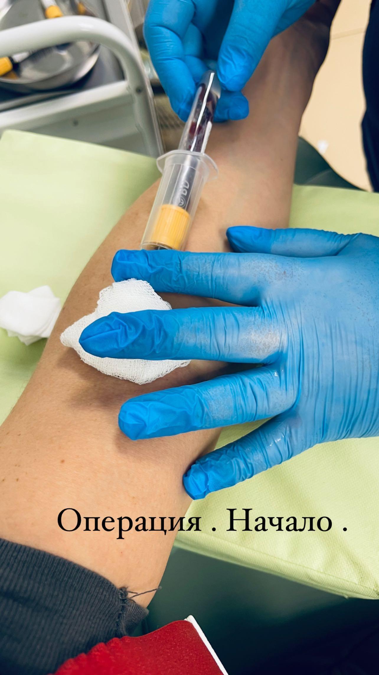 """A needle is thrust into the eyelid"": Anna Sedokova underwent surgery"