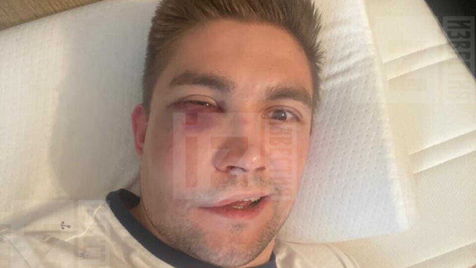 Актер Александр Паль и его друзья жестоко избили хоккеиста в центре Москвы