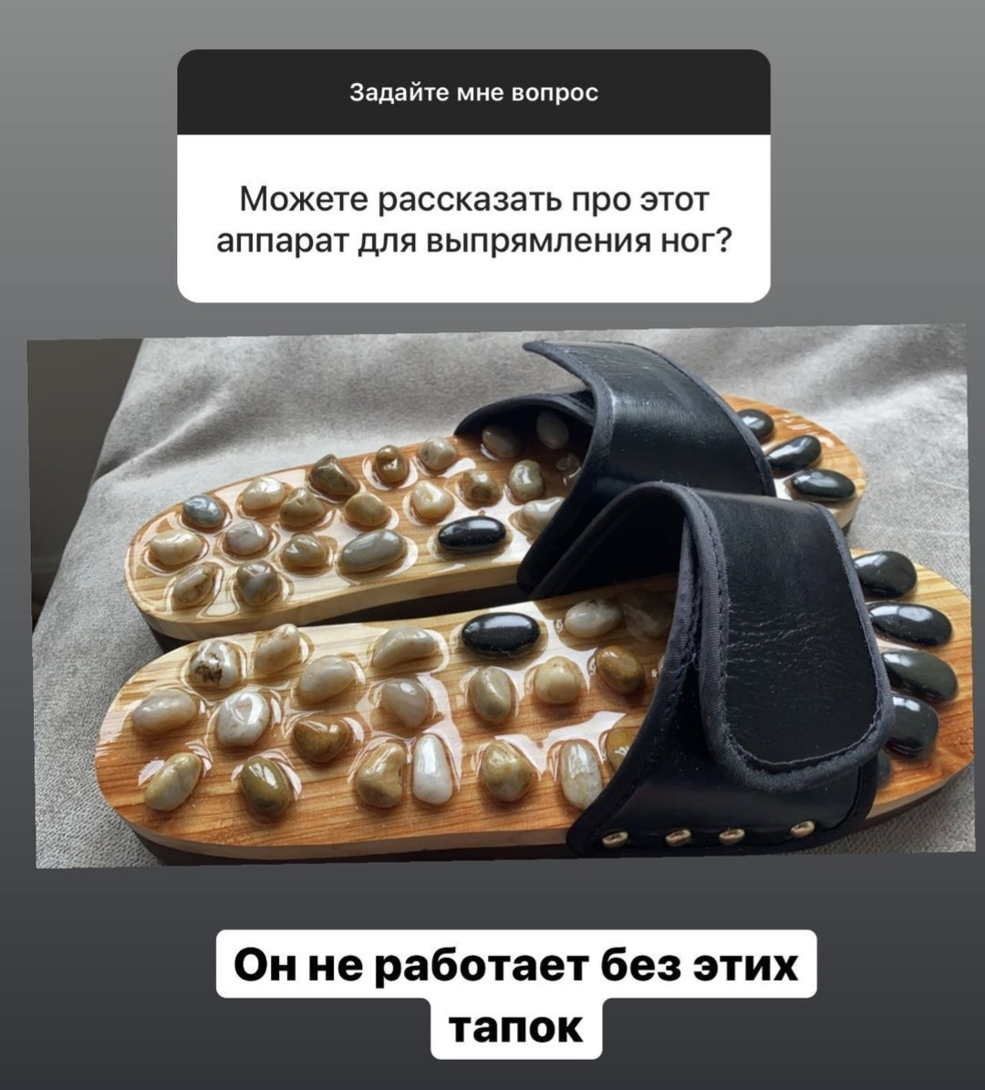 """""""Выпрямила свои кривые ноги этим аппаратом"""": Алёна Шишкова разместила фото необычного устройства"""