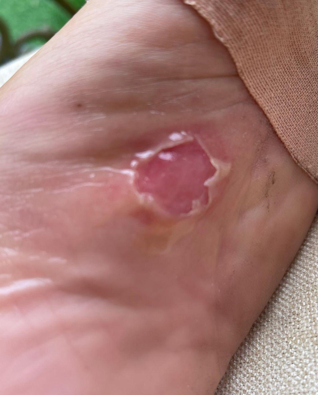 Слабонервным и впечатлительным не смотреть: Анастасия Волочкова показала стёртую кожу на ногах после презентации альбома