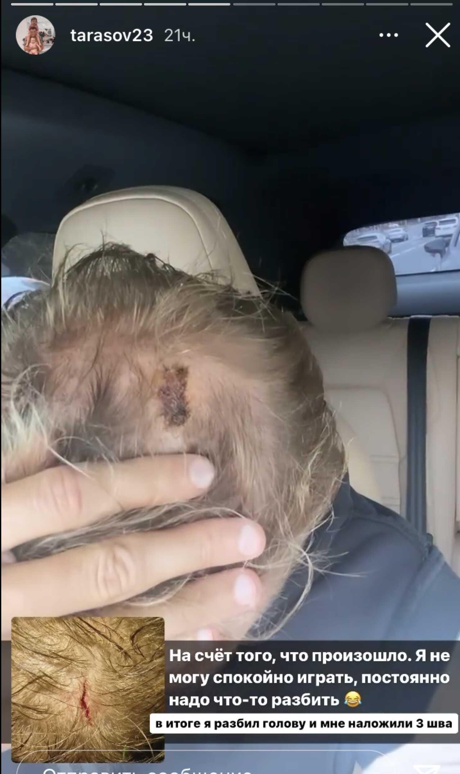 Дмитрий Тарасов разбил голову во время своего первого матча в новом клубе