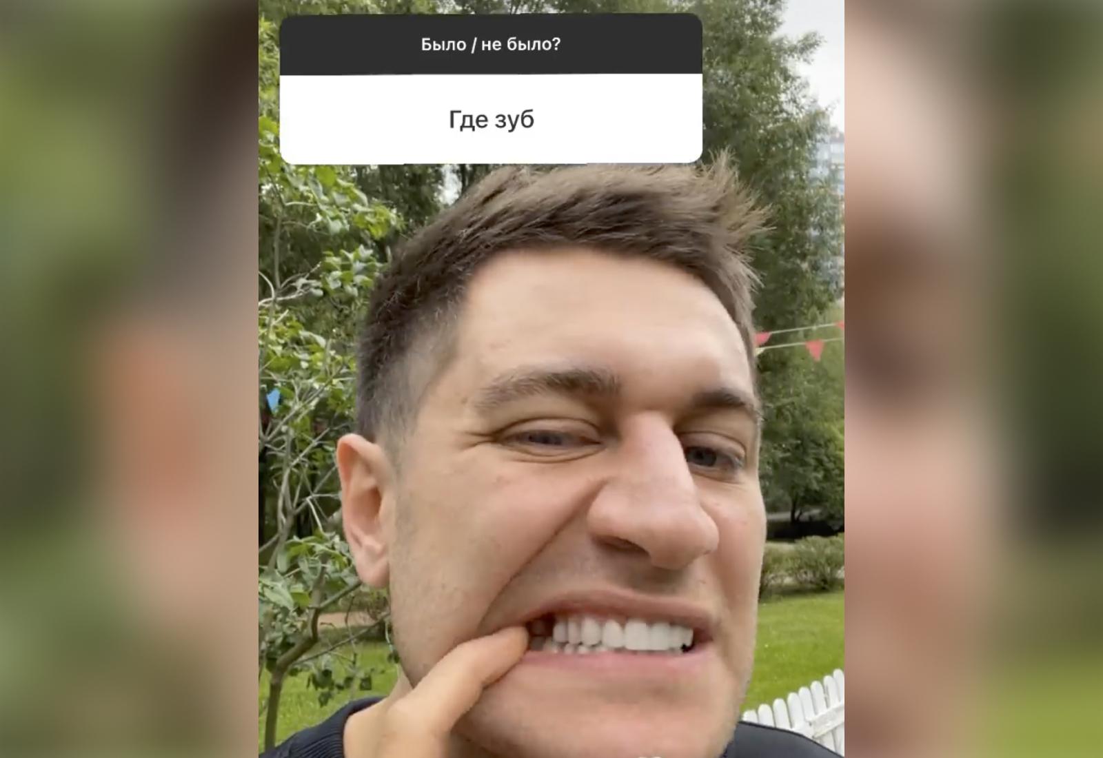 Давид Манукян честно ответил, где потерял зуб