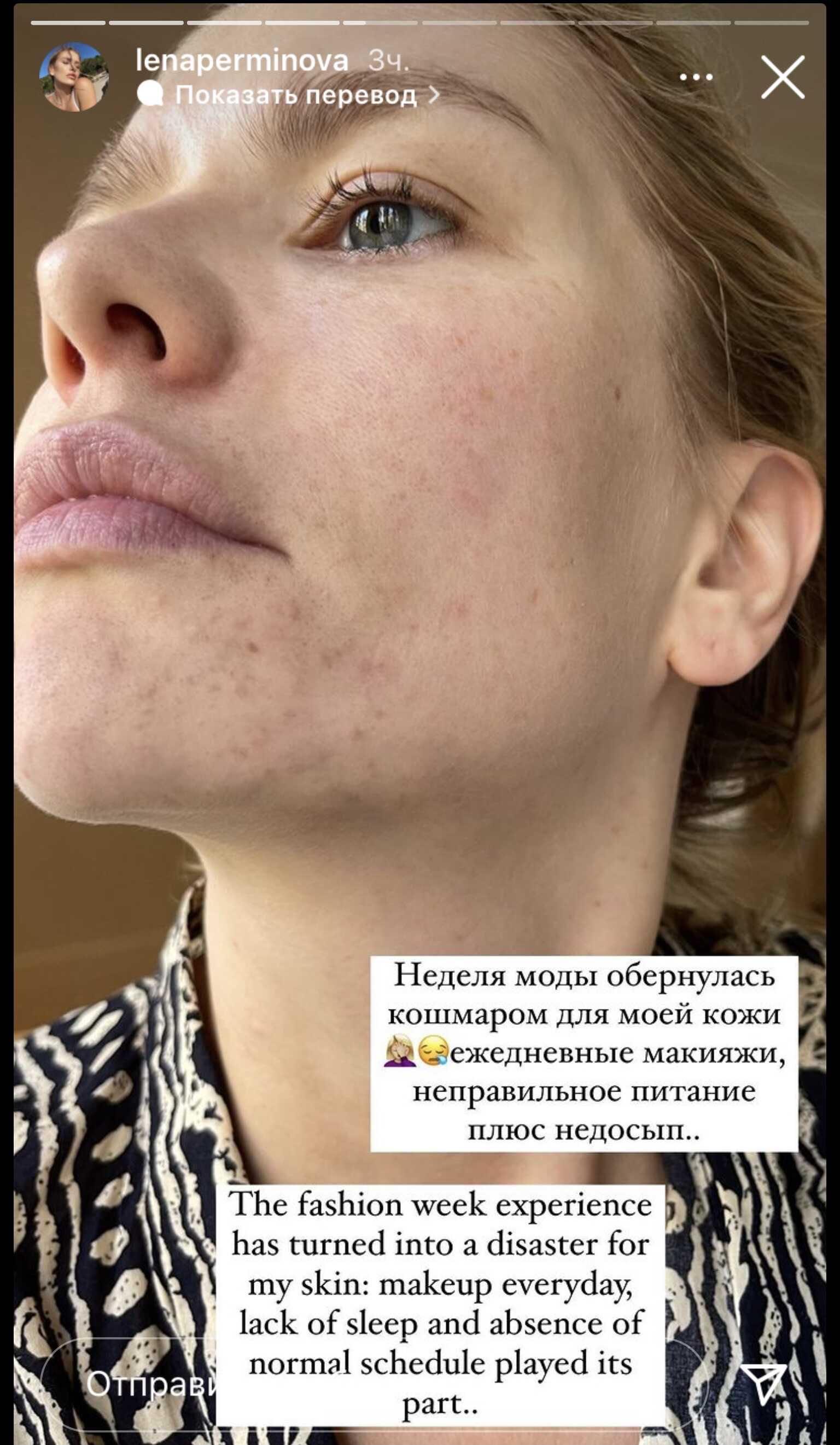 Елена Перминова показала покрывшееся сыпью лицо
